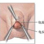 唐山老年人做包茎手术时需注意以下几点