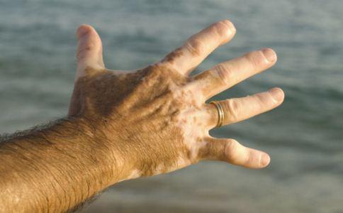 治疗白癜风要注意什么,白癜风的早期症状,治疗白癜风要避免哪些弊端