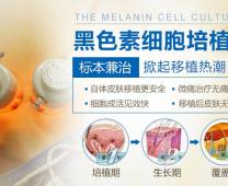 黑色素细胞培植术——体外培植 无痕再生