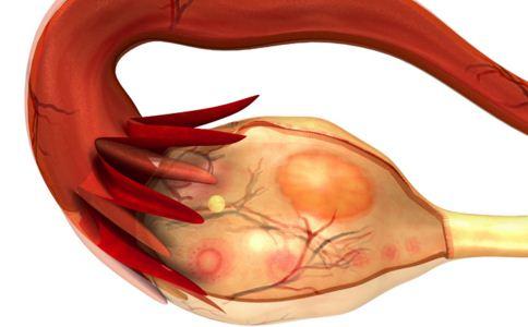 巧克力囊肿的症状 巧克力囊肿的治疗方法 巧克力囊肿能治好吗