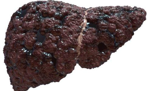 肝硬化的原因 肝硬化的症状 肝硬化如何排肝毒