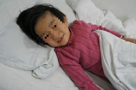 儿童癫痫发作不可预防吗
