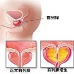 淄博前列腺增大 前列腺增大的原因 前列腺增生的