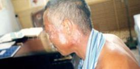 合肥华夏白癜风 康复案例 面部白斑