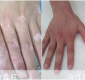 手指出现白斑?啥病?怎么治疗