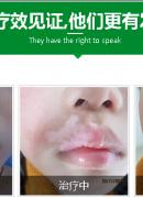 孩子脸上有白癜风该怎么办 白斑