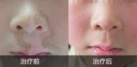 孩子脸上有白点是怎么回事?