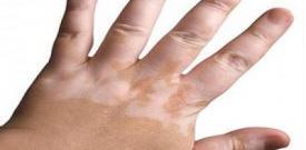 手部白癜风的治疗与护理