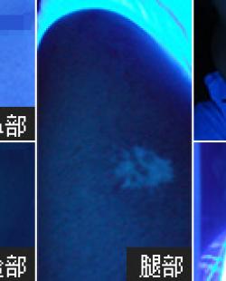 广州新世纪白癜风医院德国Wood灯检测——快速确诊 实时对比