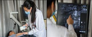白斑检测:美国三维皮肤CT