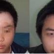 脸上长白斑怎么治疗好得快