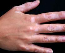 美国X-trac308nm准分子激光疗法
