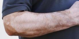 怎么判断皮肤上是否是白癜风