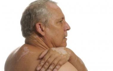看得见的诊断 美国三维皮肤CT