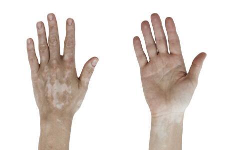 瑞士皮肤植补术—快速增加黑色素