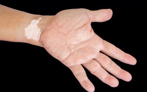 如何科学治疗白癜风,治疗白癜风的方法有哪些,如何科学治疗白癜风