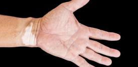 儿童皮肤出现白癜风有哪些危害 儿童白癜风治疗