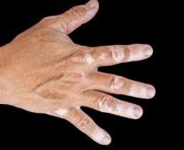德国希格玛311UVB紫外线光疗 白癜风 白癜风治疗