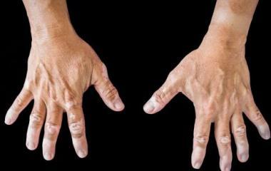 看得见的诊断美国三维皮肤CT检查