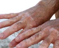 合肥白癜风治疗 怎么治疗白癜风最好 白癜风诊断检查