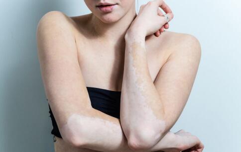 白癜风治疗 白癜风治疗恢复慢的原因有哪些