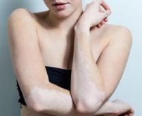 看得见的诊断:美国三维皮肤CT