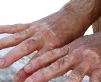 大面积白斑的优选:311窄谱UVB治疗仪