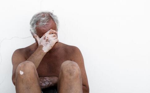 老年白癜风有必要治疗吗,老年白癜风怎么治疗好,老年白癜风治疗方法