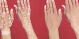 发病初期的白癜风症状有哪些 白癜风症状有哪些 初期白癜风症状