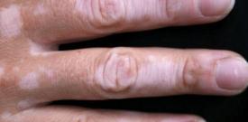 手部患上白癜风原因 手部患上白癜风症状