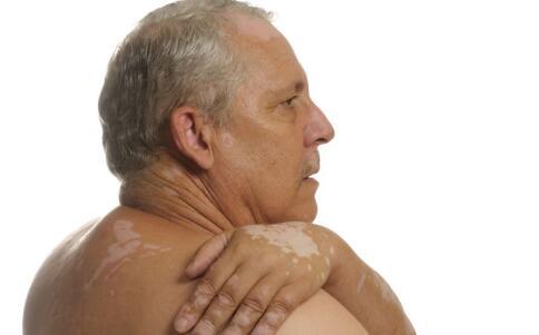 老年白癜风病发原因及治疗
