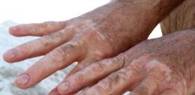 进展期的白癜风是否停止治疗?