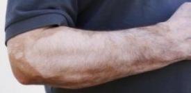 男性白癜风要做护理 男性白癜风护理 白癜风治疗医院