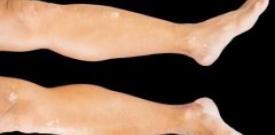 应对腿部白癜风的方法有哪些?
