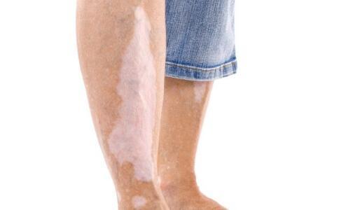 合肥白癜风医院 合肥华研白癜风医院 白癜风会导致身体免疫力下降吗