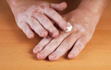 洛阳治疗白癜风皮肤病医院 洛阳白癜风皮肤专科医院 洛阳肤康皮肤病医院