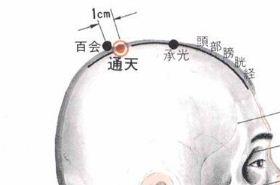 按摩通天穴位的作用,通天穴的功效与作用,通天穴的功效