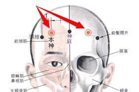 本神穴的功效与作用,本神穴的作用,按摩本神穴的作用