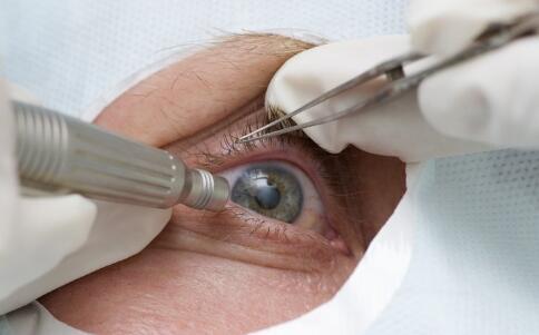 青光眼危害大 这么做可以预防