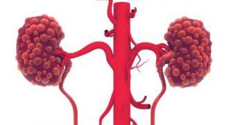 急性肾衰竭是怎么引起的 急性肾衰竭如何急救 怎样预防急性肾衰竭