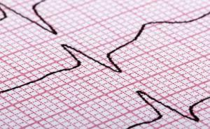 血管硬化是怎么回事?该如何预防