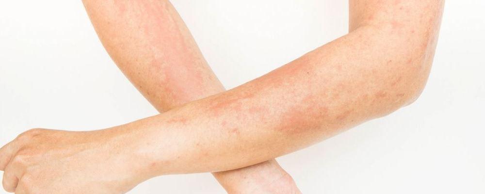 皮质激素用多了会怎样 长期用皮质激素有什么副作用 皮肤瘙痒可以用什么药
