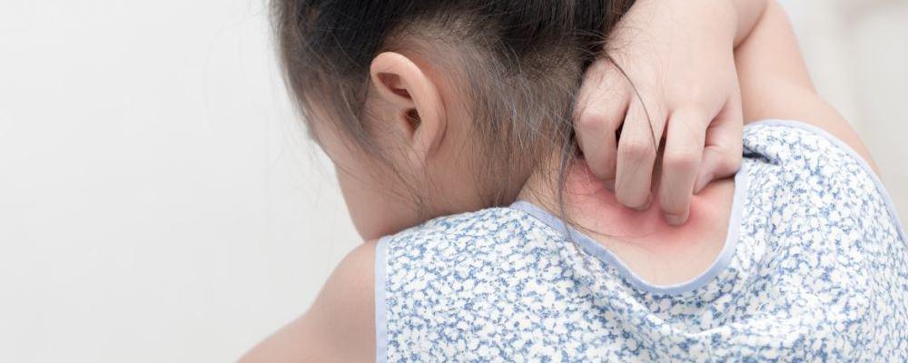 阴囊湿疹是什么回事 如何治疗阴囊湿疹 什么是阴囊湿疹