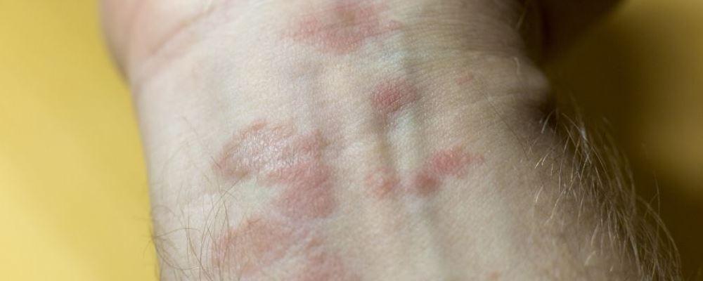 如何摆脱痤疮呢 怎么护理痤疮 患上痤疮如何护理