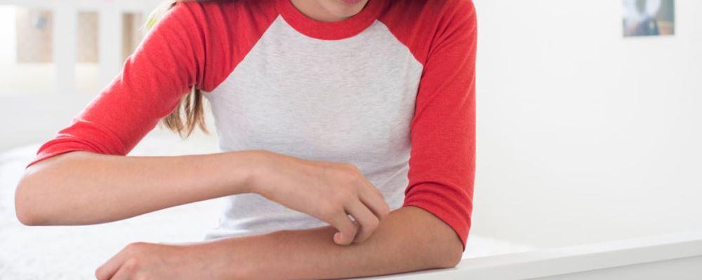 怎么治疗湿疹比较好 湿疹有哪些症状 什么食物治疗湿疹比较好