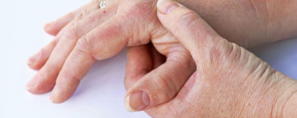春季预防湿疹吃什么好 如何预防湿疹 预防湿疹吃什么食物