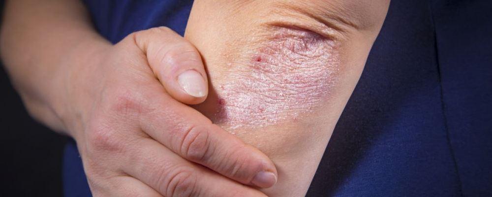 湿疹是一种很常见的皮肤病,那么湿疹的类型都有哪些呢?和小编来了解一下吧。