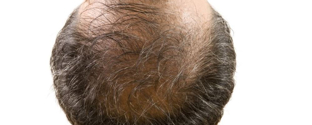 女性脱发预防 女性脱发症状有哪些 女性脱发预防脱发呢