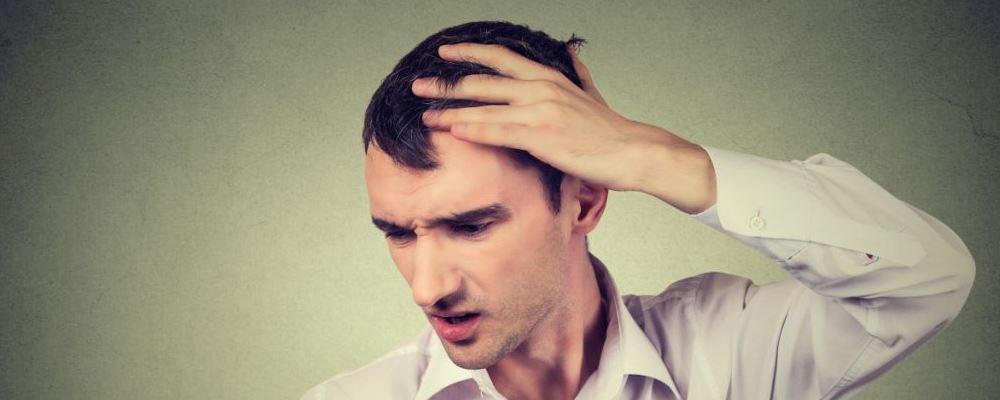 冬季男人如何防脱发 男人防脱发要注意什么 如何防脱发
