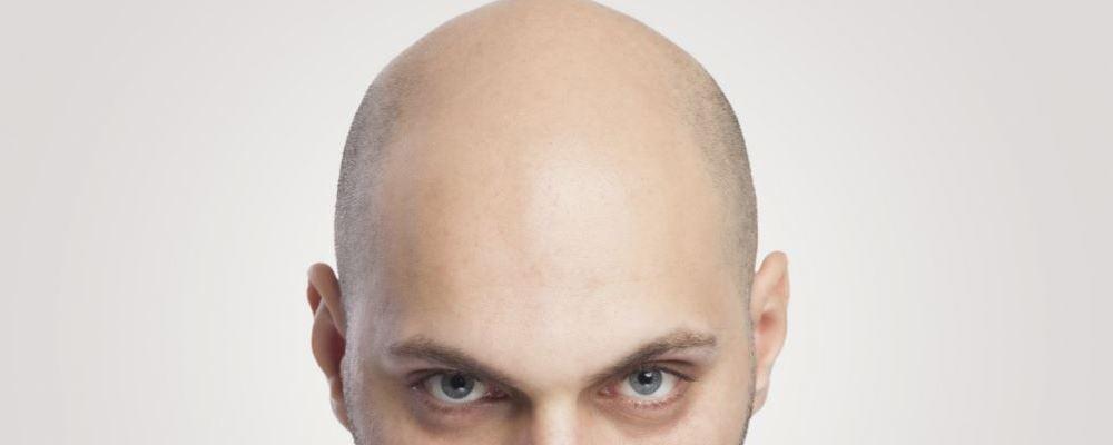 生活中要如何预防脱发 日常生活中要如何预防脱发 预防脱发的方法